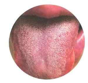 湿热典型舌苔.jpg