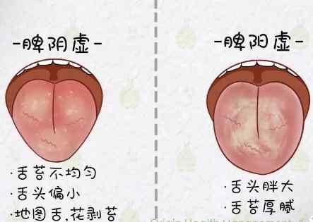 二,看舌头.jpg